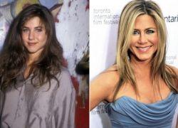 Известные люди до и после пластики: шокирующие изменения внешности